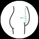 Abdominoplastia - Cirugia Plástica la Paz