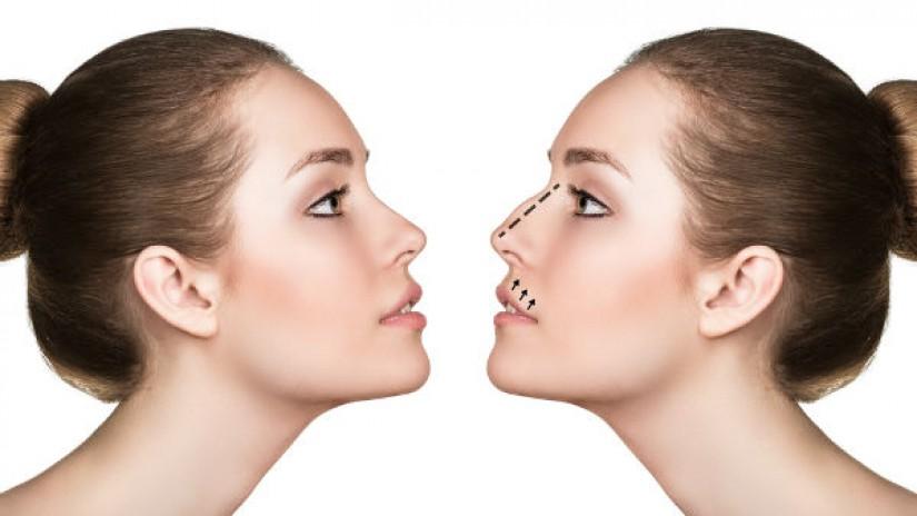 rinoplastia o cirugia de nariz