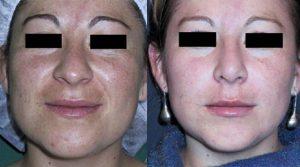 Lifting Facial - Cirugia Plastica La Paz