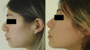 Rinoplastia - Cirugia Plastica La Paz